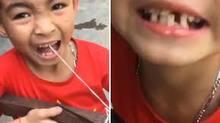 Clip cậu bé Việt Nam nhổ răng bằng nỏ lên báo Anh