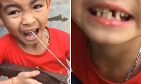 nhổ răng bằng nỏ