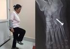 Khó tin, một phụ nữ Hà Nội uống hàng chục kg thuốc giảm đau