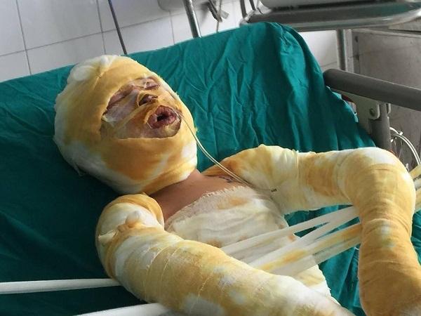 Vụ 3 mẹ con bỏng nặng: vợ và con gái chết, bố xin cứu con trai