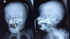 Thanh sắt dài văng trúng bé 8 tháng, xuyên thủng não