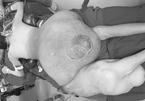 Chàng trai xứ Nghệ cõng khối u 45kg, phải bò trên đường