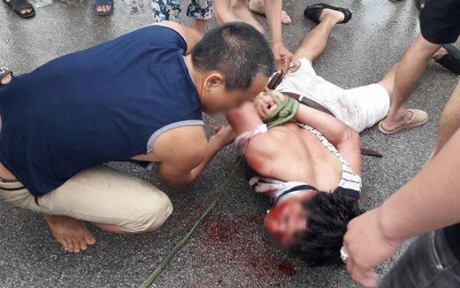 Người đàn ông bị đánh bầm dập vì nghi bắt cóc trẻ em ở Hưng Yên