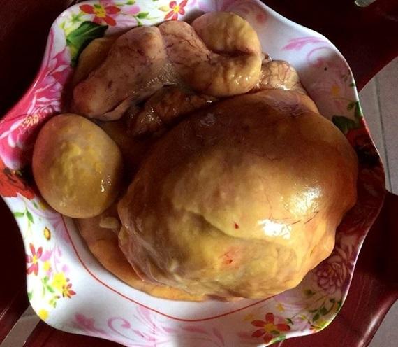Làm thịt gà, phát hiện dị vật nghi là 'kê bảo'