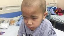 Phẫu thuật 4 lần, bé trai K não vẫn gặp hiểm nguy