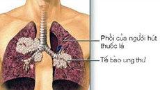 Ung thư phổi là bệnh có tiên lượng xấu: Chuyên gia chỉ rõ những dấu hiệu của bệnh