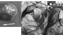 Bệnh hiếm: Khối u hơn 5kg to như quả bưởi chiếm toàn bộ gan phải