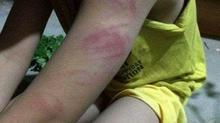 Học sinh lớp 1 bị đánh tím tay vì đọc viết chưa thông thạo