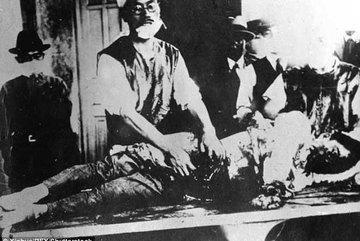 Bí mật rợn người về đội thí nghiệm trên người của Nhật