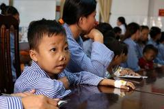 Căn bệnh di truyền khiến 2 vạn người Việt mang gương mặt giống nhau