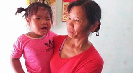 Thanh Hóa: Cô giáo đánh vào đầu khiến bé 3 tuổi méo miệng?