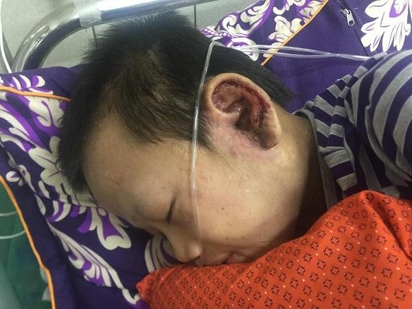 hoàn cảnh khó khăn,bệnh hiểm nghèo,từ thiện vietnamnet,nhân ái,xuất huyết giảm tiểu cầu vô căn