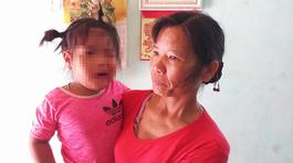 Cô giáo bị tố đánh bé gái 3 tuổi méo mồm