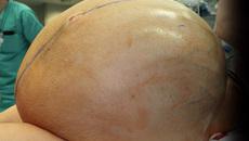 Ca cực hiếm: Người phụ nữ mang khối u buồng trứng 60kg