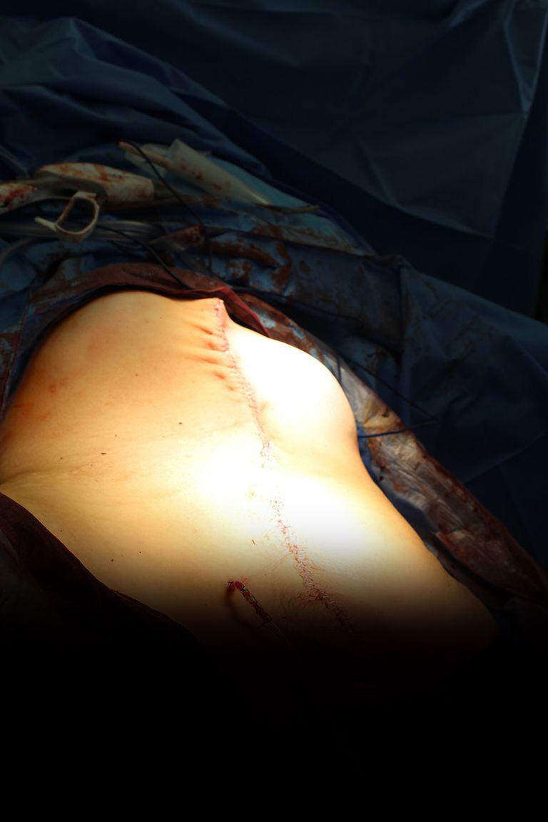 khối u,u nang buồng trứng,tử cung,Ung thư buồng trứng
