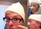 Khó tin: 42 tuổi phẫu thuật tới 86 lần vì ung thư da