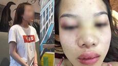 """Cô gái bị bạn trai ngoại quốc đánh, tung clip """"nóng"""" lên mạng: Tôi chấp nhận vì tình yêu"""