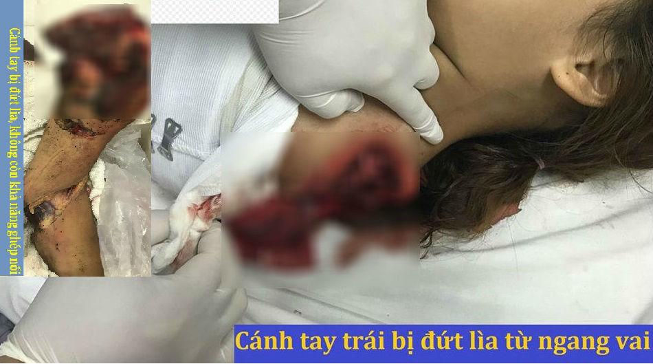 Bé gái vĩnh viễn mất cánh tay trái khi té ngã vào máy cưa gỗ