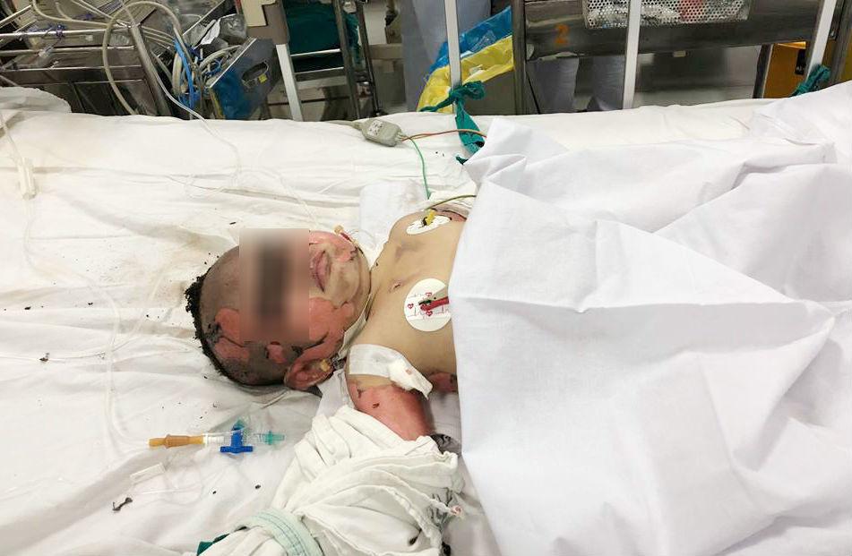 Bình gas phát nổ khi nấu ăn, thai phụ và con gái bỏng nặng