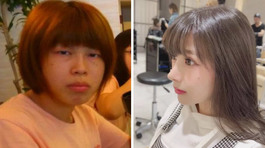 Nữ sinh Nhật Bản khiến nhiều người ngạc nhiên sau phẫu thuật thẩm mỹ