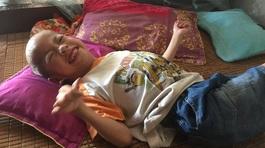 Bố mẹ chia tay, bé trai bị Down sống lay lắt cùng ông bà nội