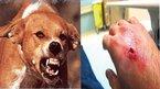 Bị chó dại cắn, 2 bé trai tỉnh táo đến lúc tử vong
