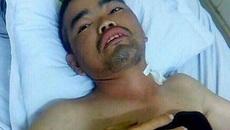 Tai nạn lao động nghiêm trọng, người đàn ông trụ cột nguy kịch