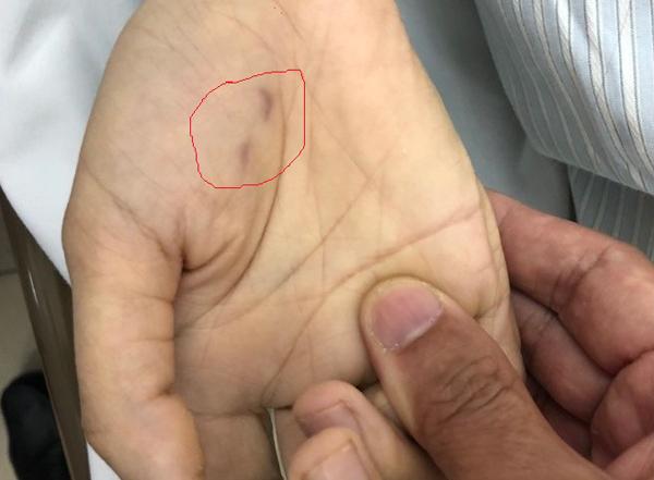 Hà Nội: Nữ bác sĩ thú y tử vong do chó dại cắn