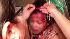 Hải Phòng: Chồng và bồ nhí đánh vợ trọng thương
