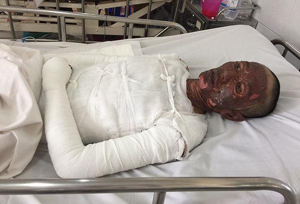 Cả gia đình bỏng nặng: Anh Sơn đã thoát chết