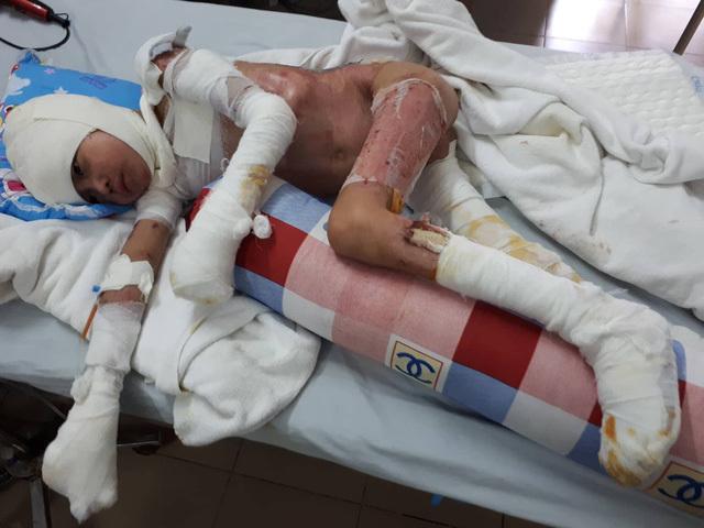 Bé trai sống sót sau vụ cháy ở Gia Lai đã được phẫu thuật da 10 lần