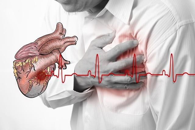 tim mạch,nhồi máu cơ tim,tai biến mạch máu não,tai biến