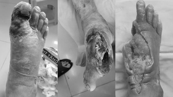 Căn bệnh 3,5 triệu người mắc khiến bàn chân mục ruỗng trơ xương
