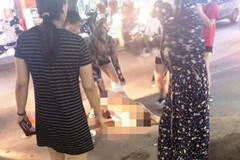 Khởi tố 3 phụ nữ đánh ghen lột đồ, đổ nước mắm lên nữ chủ tiệm spa