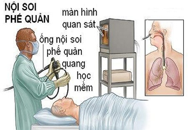 bệnh viện Bạch Mai,nội soi,tai biến