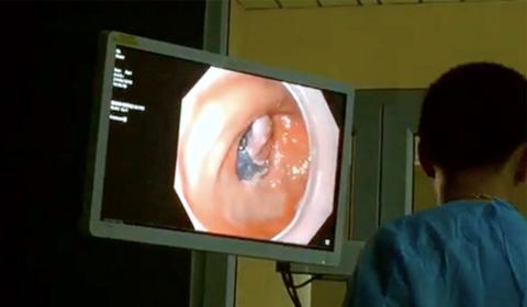 Xem tiến sĩ Nhật trình diễn dò cắt khối ung thư trong dạ dày
