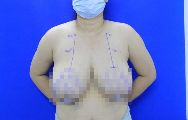 phì đại tuyến vú,phẫu thuật thẩm mỹ,bệnh viện E