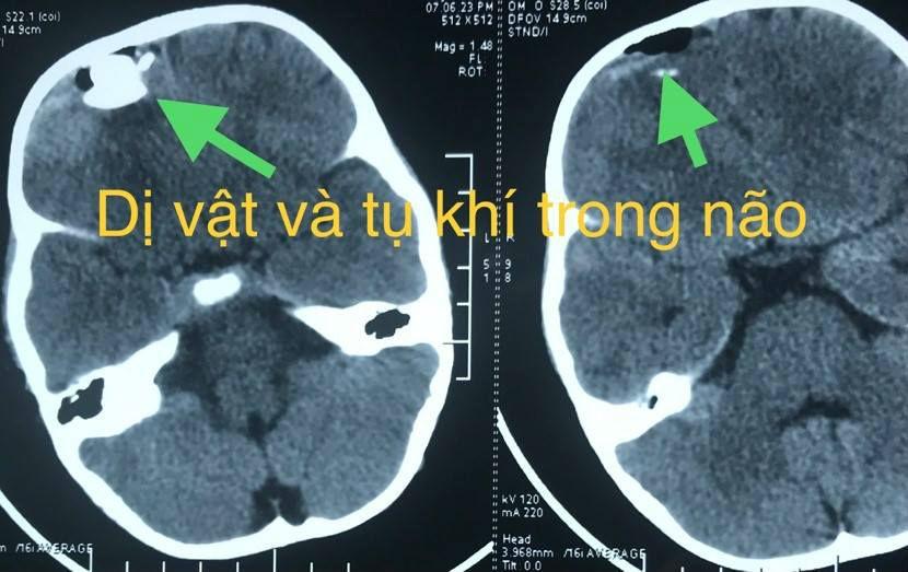 súng tự chế,Bình Thuận,tai nạn trẻ em