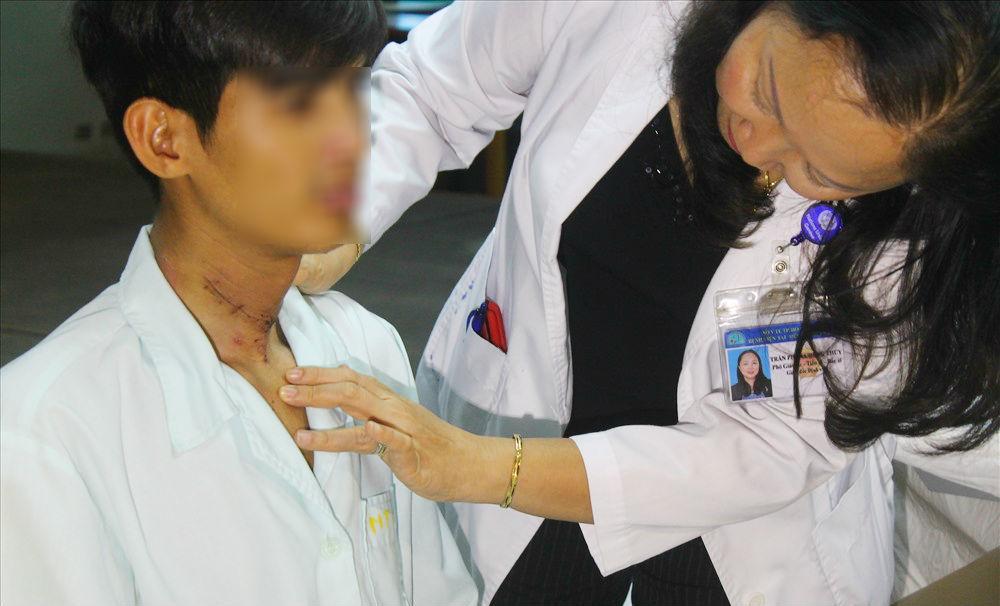 Bác sĩ Việt giúp chàng trai Campuchia nói sau 2 năm đứt khí quản