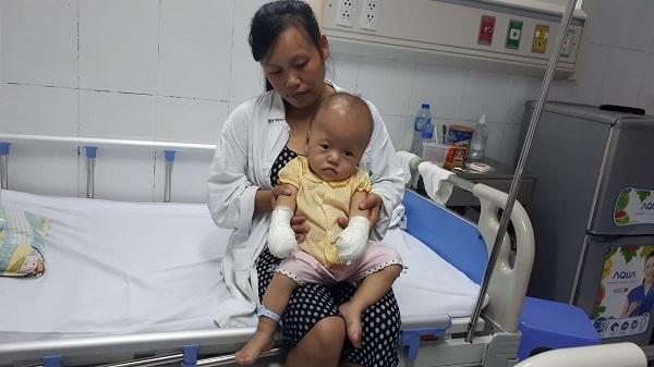 Bé gái 17 tháng tuổi bị não úng thủy, đa dị tật cần giúp đỡ