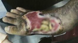 Bé gái bị rắn độc cắn, lòi xương bàn chân ra ngoài