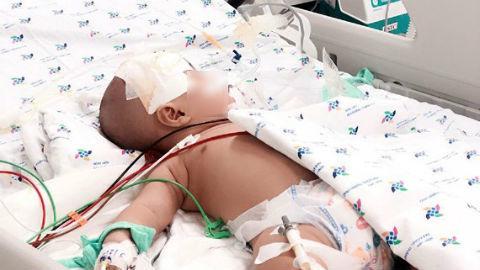 Bị viêm màng não, bé 6 tháng suýt chết vì bị chẩn đoán sốt siêu vi