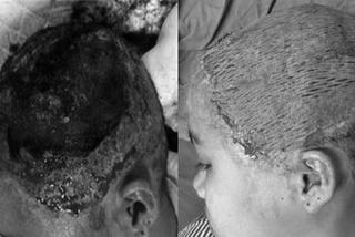 Thiếu nữ 17 tuổi lột hết da dầu sau uốn tóc mừng sinh nhật