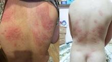 Nổi mẩn đỏ, ngứa sau khi tắm biển Đà Nẵng