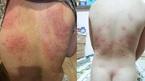 Sở TN&MT Đà Nẵng khuyến cáo du khách hạn chế tắm biển
