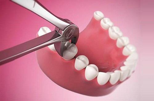 Phòng nỗi lo bỗng nhiên… mất răng