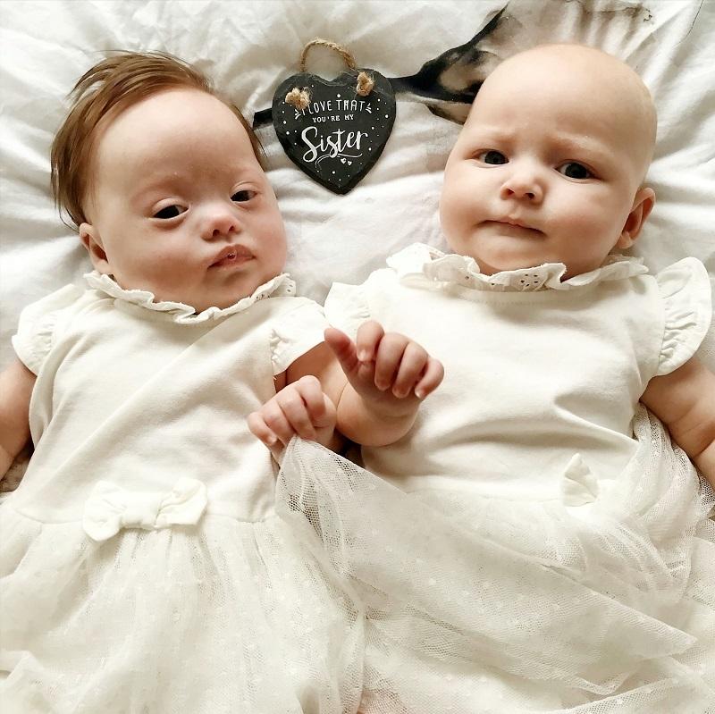 cặp song sinh triệu đôi có một,sinh đôi,trẻ mắc hội chứng down
