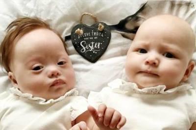 Kỳ lạ cặp song sinh 'triệu đôi có một' trên thế giới