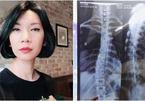 Căn bệnh siêu mẫu Xuân Lan mắc phải và lời cảnh báo cho nhiều chị em