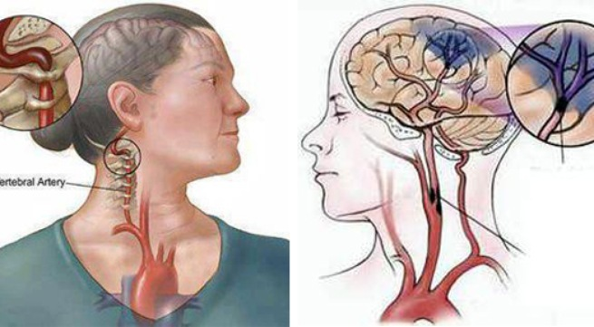 đột quỵ,tai biến mạch máu não,đau ngực